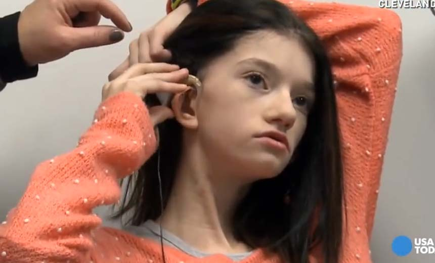 Science Does The Impossible: One Young Girl Hears For the First Time. Don't Miss This Incredible Moment!